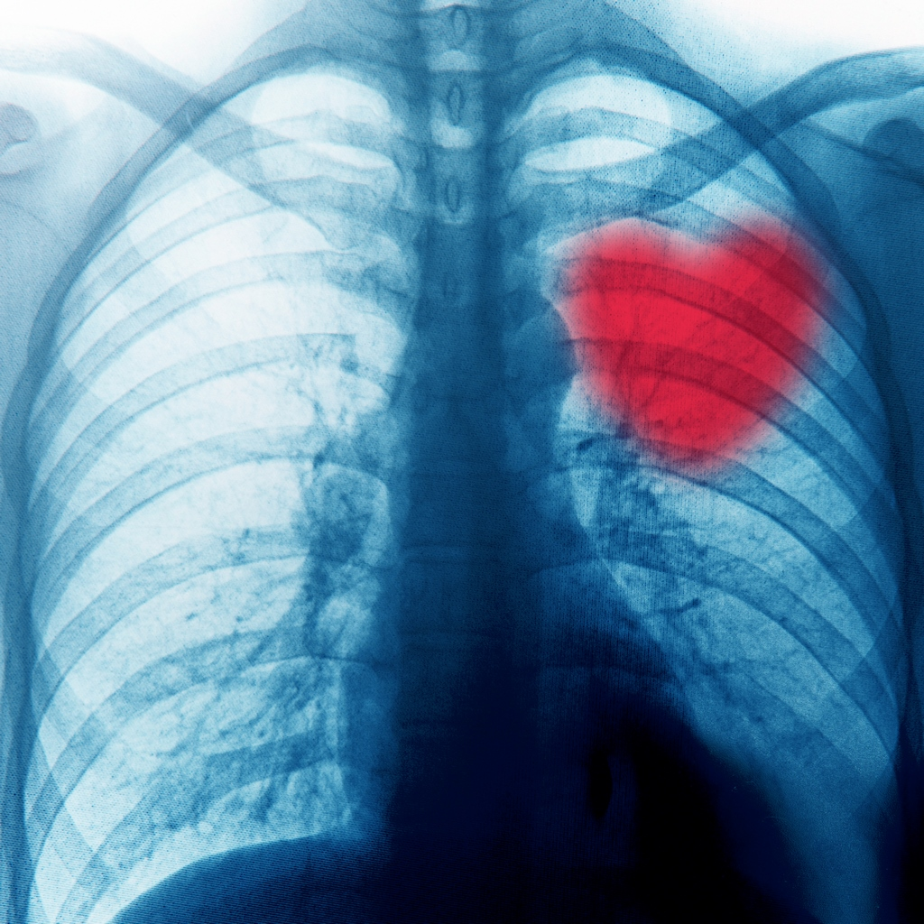 heart-x-rayed-chest